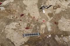Omicidio di Rotondella, l'arrestato è piantonato in ospedale