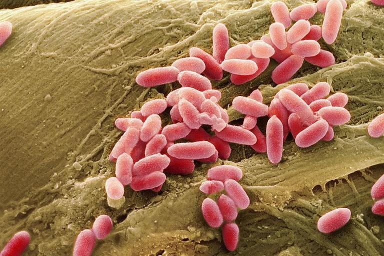 Acqua minerale con batterio. I LOTTI DI ACQUA MINERALE RITIRATI